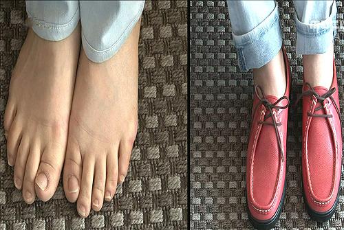 신발로 인한 건강적신호, 그 원인과 해결책은? 이미지-9