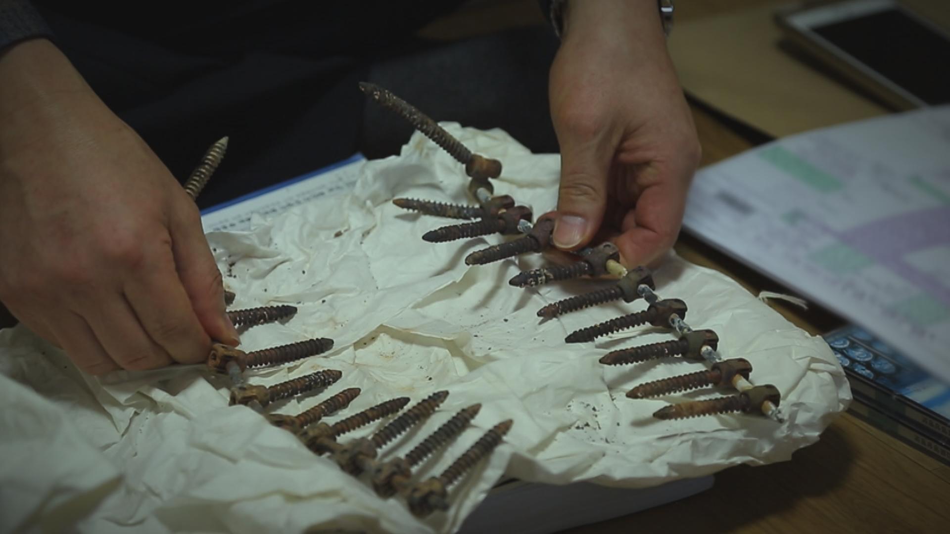 <PD수첩> 수술 중 사망한 여성 몸에서 나온 20개의 철심